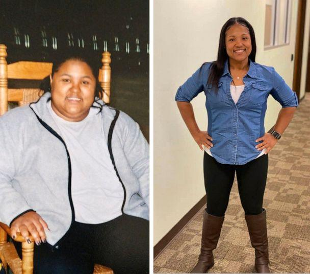 PHOTO: Brandee Johnson, 40, is pictured before and after she lost 105 pounds. (Courtesy Brandee Johnson)