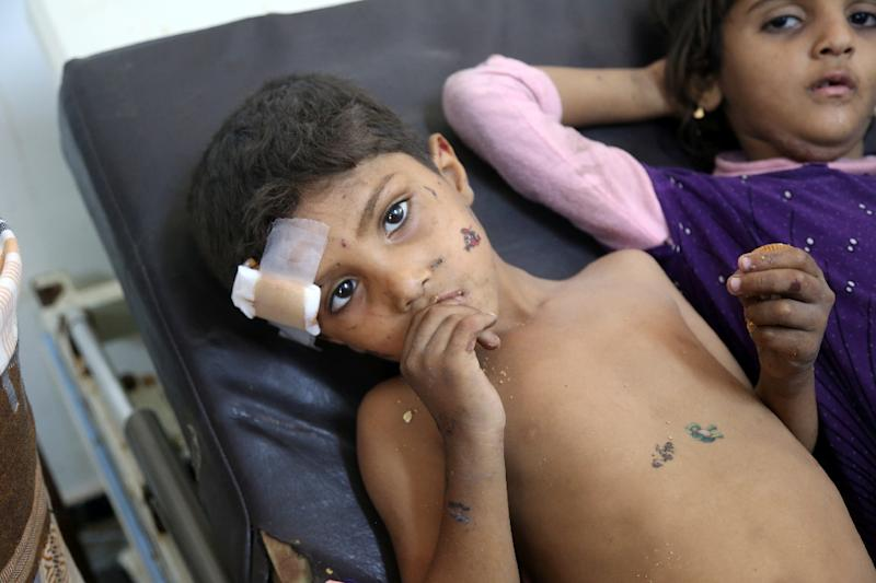 The funding appeal came a day after several children were among those killed in a strike on the rebel-held port of Hodeida (AFP Photo/ABDO HYDER)