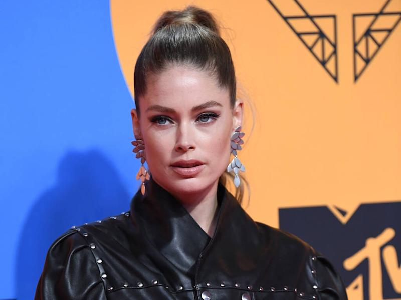 Doutzen Kroes uses acupuncture to 'plump and lift' her face