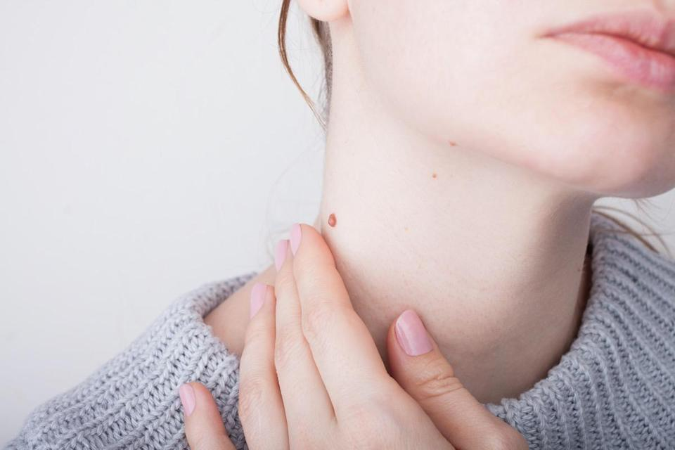 Girl with birthmarks on the neck