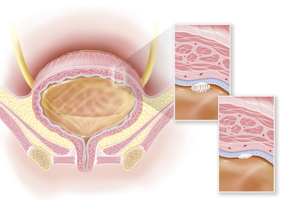 Stage 0a and 0is superficial bladder cancer, urothelial and in situ carcinoma. This illustration shows a woman's bladder with, in the upper right of the bladder wall, an in situ stage 0is carcinoma. A zoom at the level of the bladder wall with all its structures allows to see the appearance of this high grade tumor, represented in white. The tumor is still limited to the layer of the most superficial cells of the wall of the bladder, it is larger than the stage 0a tumor (non-invasive papillary urothelial carcinoma). (Photo by: BSIP/Education Images/Universal Images Group via Getty Images)