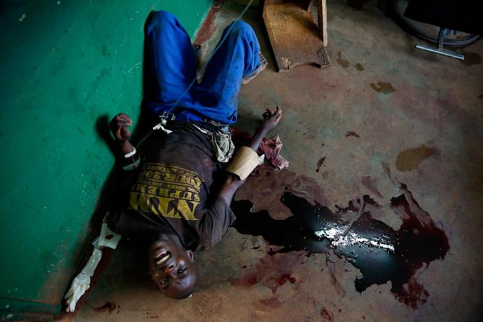 A young man screams in pain as he lies in a pool of blood on the floor of Bangui's hospital, Bangui, Central African Republic, Thursday, Dec. 5, 2013, following a day-long gun battle between Seleka soldiers and Christian militias. Fighting came to the capital of Central African Republic on Thursday, leaving dozens of casualties and posing the biggest threat yet to the new government just as the U.N. Security Council authorized an intervention force to prevent a bloodbath between Christians and Muslims. (AP Photo/Jerome Delay)