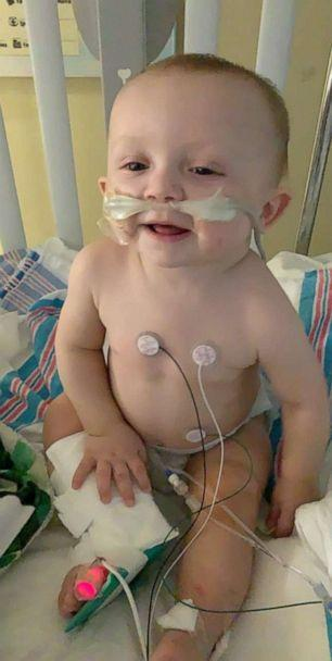 PHOTO: Antonio DiGrigorio contracted Respiratory syncytial virus, or RSV, when he was 8 months old. (Ariana DiGrigorio)