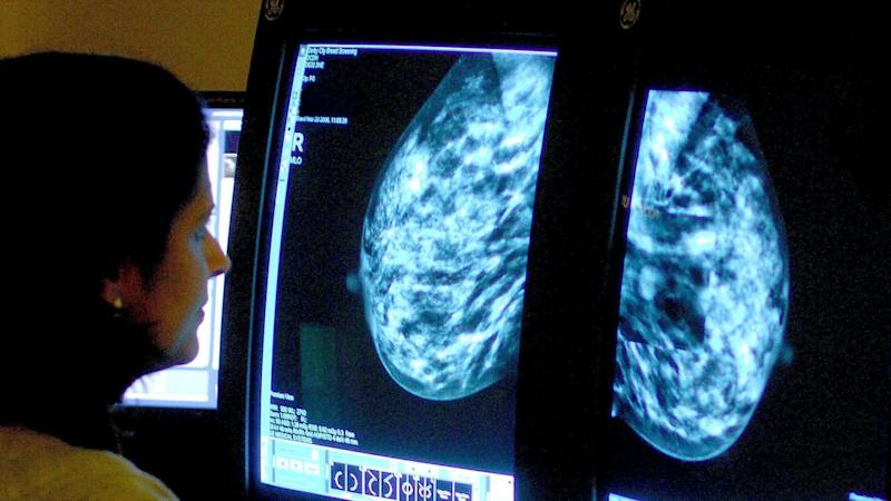 One million missed mammograms because of pandemic, charity warns