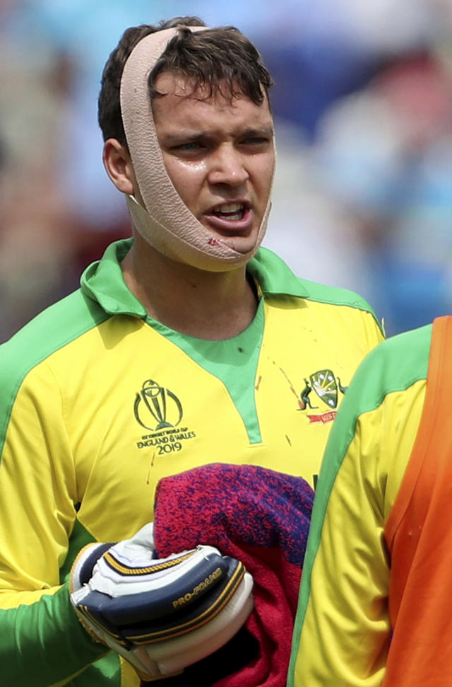 Australia's Alex Carey talks to teammate Adam Zampa during a drinks break after he was hit off the bowling of England's Jofra Archer during the Cricket World Cup semi-final match between England and Australia at Edgbaston in Birmingham, England, Thursday, July 11, 2019. (AP Photo/Aijaz Rahi)