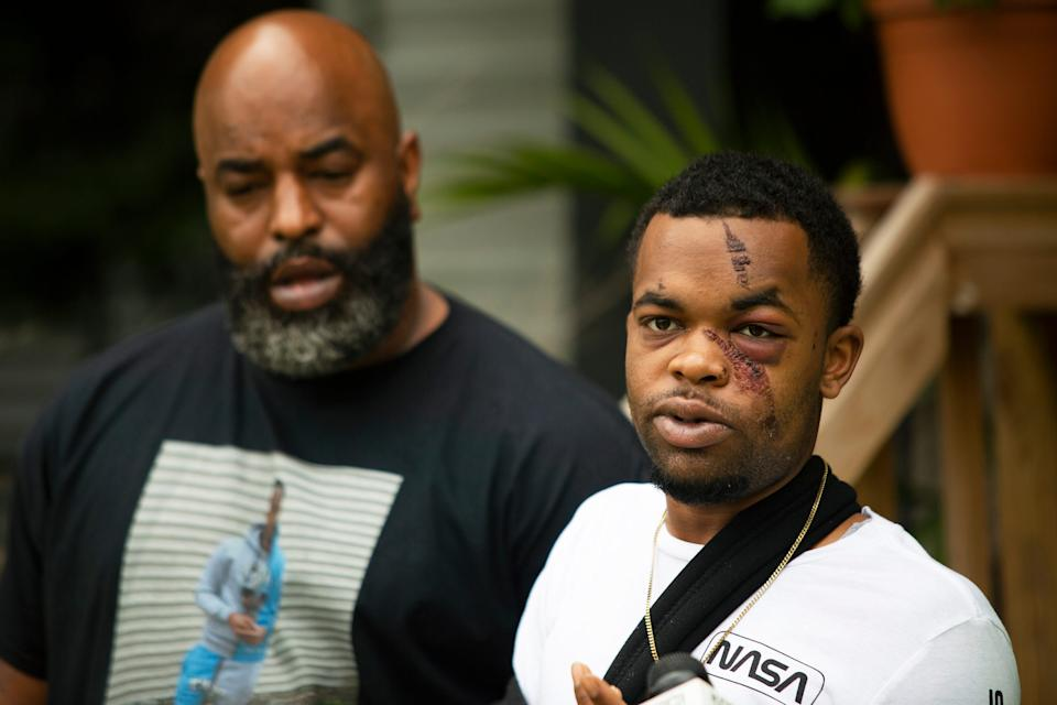 Darquan Jones (right) speaks during a press conference with his father, Daryl Jones Jr., at a family residence on May 19, 2020. Jones, 22, was assaulted by three white men in the early morning of May 16 in an attack he and his family have said was racially motivated, resulting in five facial fractures and a broken wrist. Jones said there was an attempt to drown him in a nearby creek, and at least one attacker repeatedly used racial slurs.