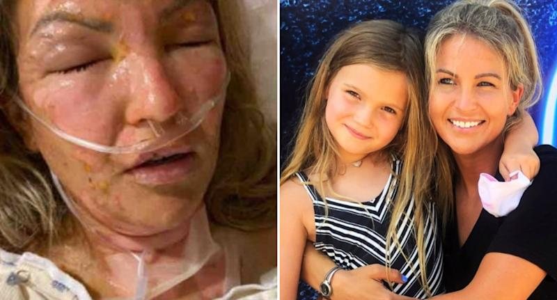 Kate Wise from Texas is severely burnt and in the ICU after. the hand sanitiser she had on caught fire. Source: GoFundMe