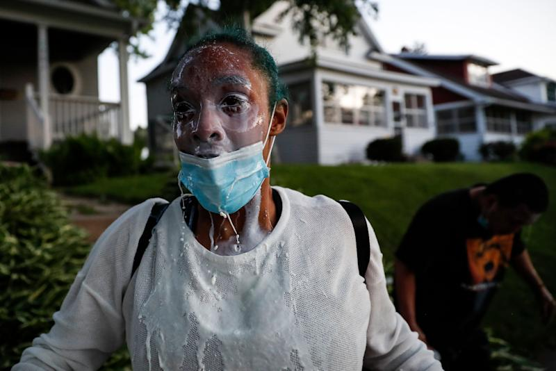 <strong>A protestor douses her face with milk after being exposed to tear gas fired by police.</strong> (Photo: ASSOCIATED PRESS)