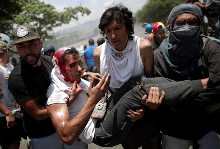"""An opposition demonstrator bleeds from his head as he is carried by fellow protesters after being run over by a Venezuelan National Guard vehicle on a street near the Generalisimo Francisco de Miranda Airbase """"La Carlota"""" in Caracas, Venezuela April 30, 2019. (Photo: Ueslei Marcelino/Reuters)"""