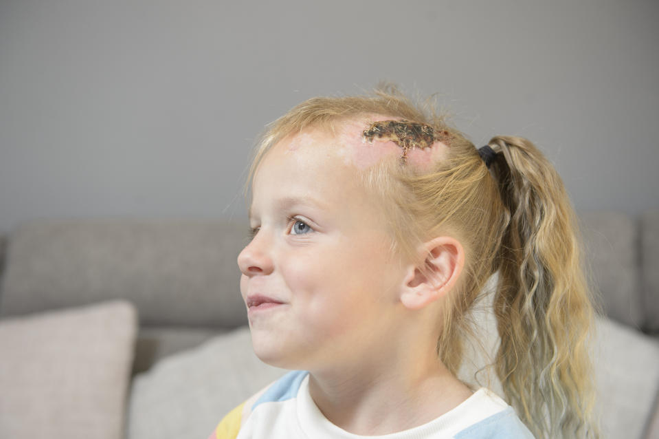 Emily Hill, 5, who was knocked down by an electric motorbike near Bradford, West Yorks.