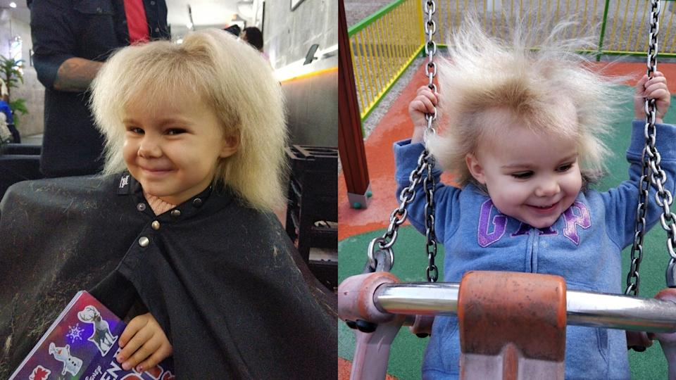 Ruby Chapman has Uncombable Hair Syndrome. (PA REAL LIFE/Collect)