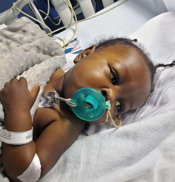 PHOTO: Kasen Donerlson, of Syracuse, N.Y., survived both COVID-19 and a liver transplant before his first birthday. (Courtesy Mitayah Donerlson)