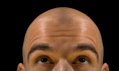 Baldness and rashes? Experts split over unusual Covid-19 risk factors and symptoms