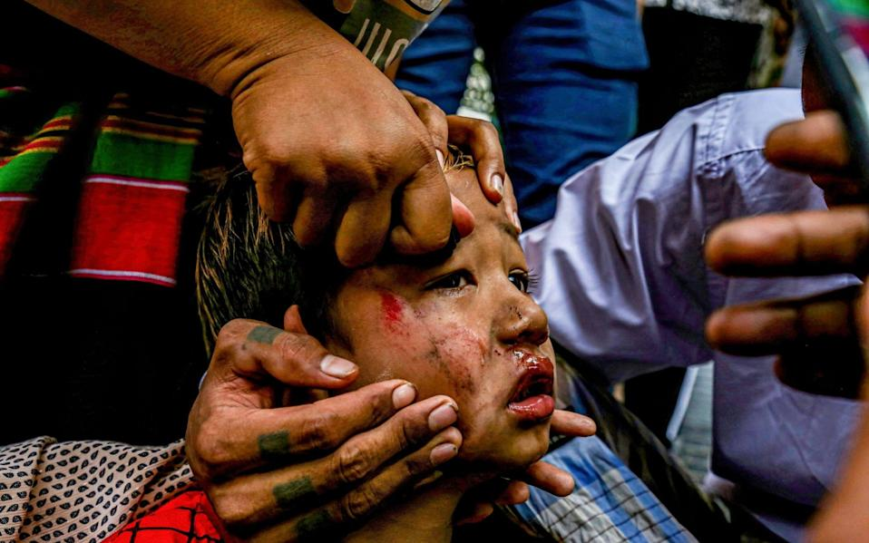 A bruised child being slingshot by soldiers hides in a truck - Alamy Live News