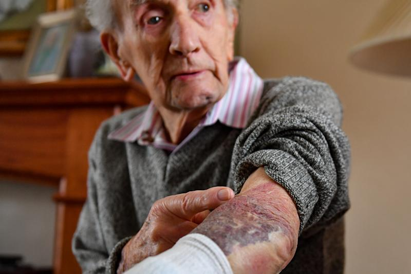 John Cox, 102, shows the injuries he sustained, after he fought off a conman burglar who tried to gain access to his home in Lincoln, on Tuesday.