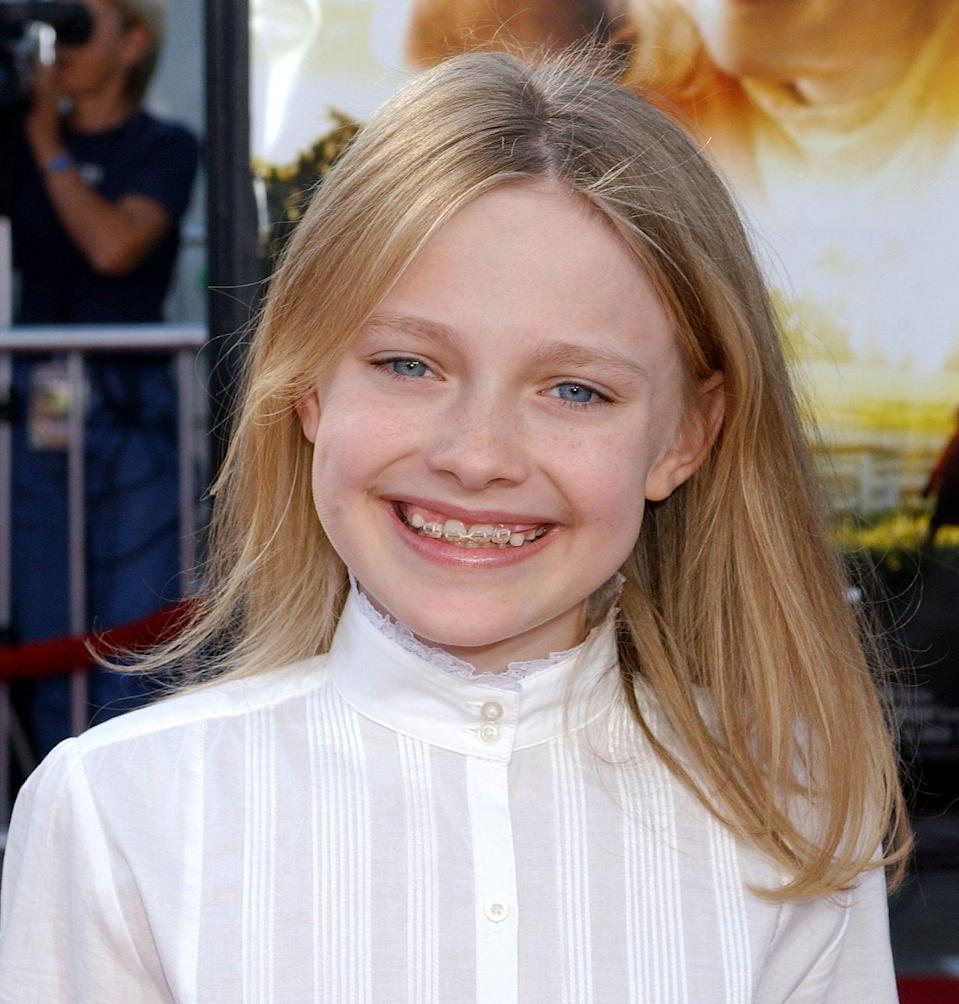 """<p>Dakota Fanning rose to fame when she was just 7 years old, so it's no surprise she went through major moments growing up in the public eye. She spent a lot of time talking about her teeth on TV, as this <a href=""""https://youtu.be/nERT00Ew9vU"""" rel=""""nofollow noopener"""" target=""""_blank"""" data-ylk=""""slk:YouTube video shows"""" class=""""link rapid-noclick-resp"""">YouTube video shows</a>, but she was genuinely excited for braces. Now, her smile is as perfect as ever.</p>"""