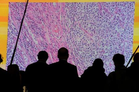 FILE PHOTO: Cancer cells are seen on a big screen connected to a microscope at the CeBit computer fair in Hanover