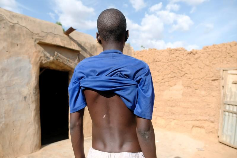 A boy shows scars on his back in his home's courtyard in the town of Daura