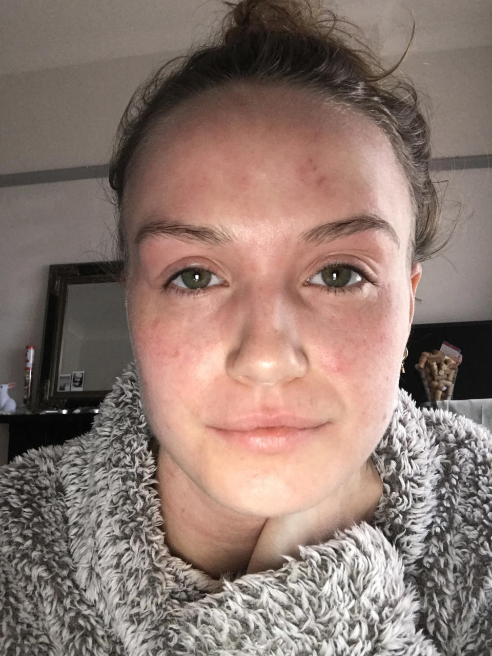 Woman with eczema on her face and eyelids