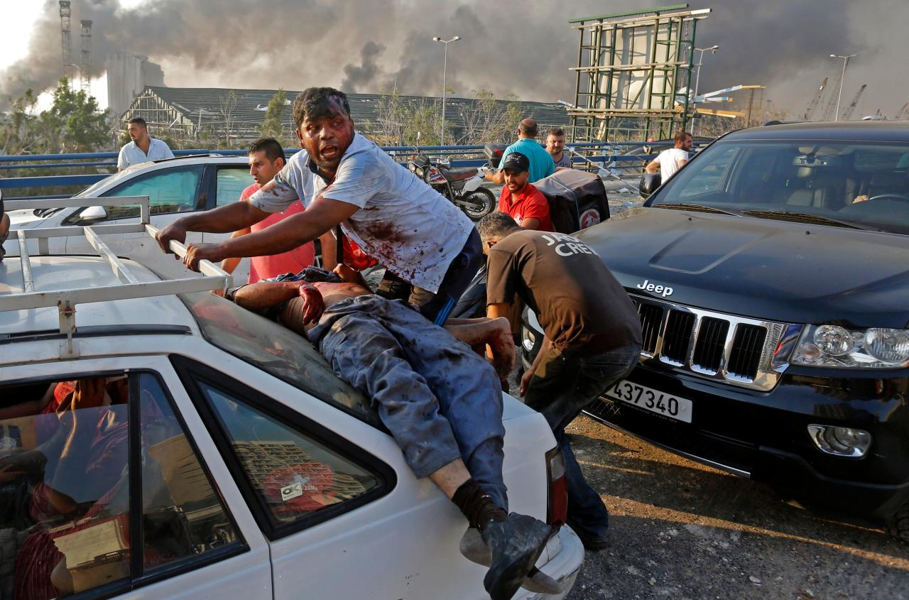 An injured man lies at the back of a car before being rushed away from the scene of a massive explosion at the port of Lebanon's capital Beirut on August 4, 2020. - Two huge explosion rocked the Lebanese capital Beirut, wounding dozens of people, shaking buildings and sending huge plumes of smoke billowing into the sky. Lebanese media carried images of people trapped under rubble, some bloodied, after the massive explosions, the cause of which was not immediately known. (Photo by Marwan TAHTAH / AFP) (Photo by MARWAN TAHTAH/AFP via Getty Images)