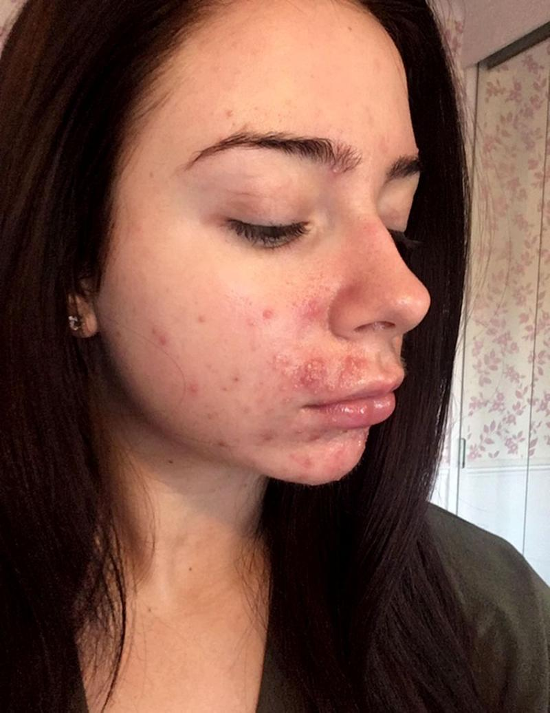 Mollie described her breakouts as a