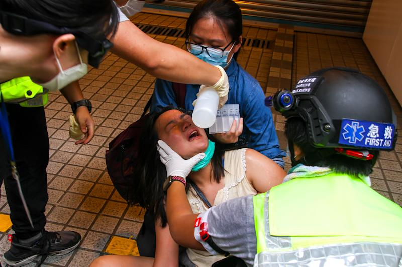 A woman is treated after a pepper-spray attack injuries her eye during street protests in Causeway Bay, Hong Kong, China on July 1, 2020. (Photo by Tommy Walker/NurPhoto via Getty Images)