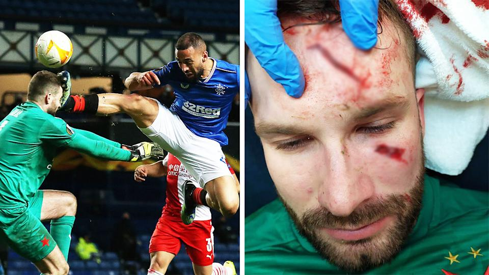 Kemar Roofe kicking Ondrej Kolar in the head (pictured left), and the head cuts from the kick on Kolar (pictured right).