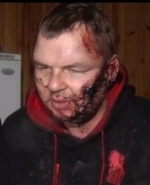 In this frame grab provided by 5 Channel, bloody Dmytro Bulatov speaks to press after he was found near Kiev, Ukraine, Jan. 31, 2014. Bulatov, an opposition protester who disappeared more than a week ago says he was kidnapped and tortured by unknown assailants, in a chilling development that is likely to further stoke anger against the embattled government of President Viktor Yanukovych. Dmytro Bulatov, is the latest in a string of disappearances and mysterious attacks on prominent opposition leaders, which left one activist dead and several badly beaten. (AP Photo/5 Channel)