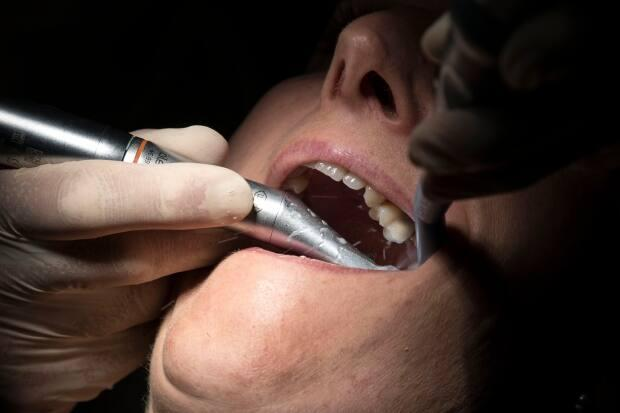 Despite working daily with unmasked patients, dentists in the province were not included in Phase 1 of the vaccination rollout. (Sebastien Bozon/AFP/Getty Images - image credit)