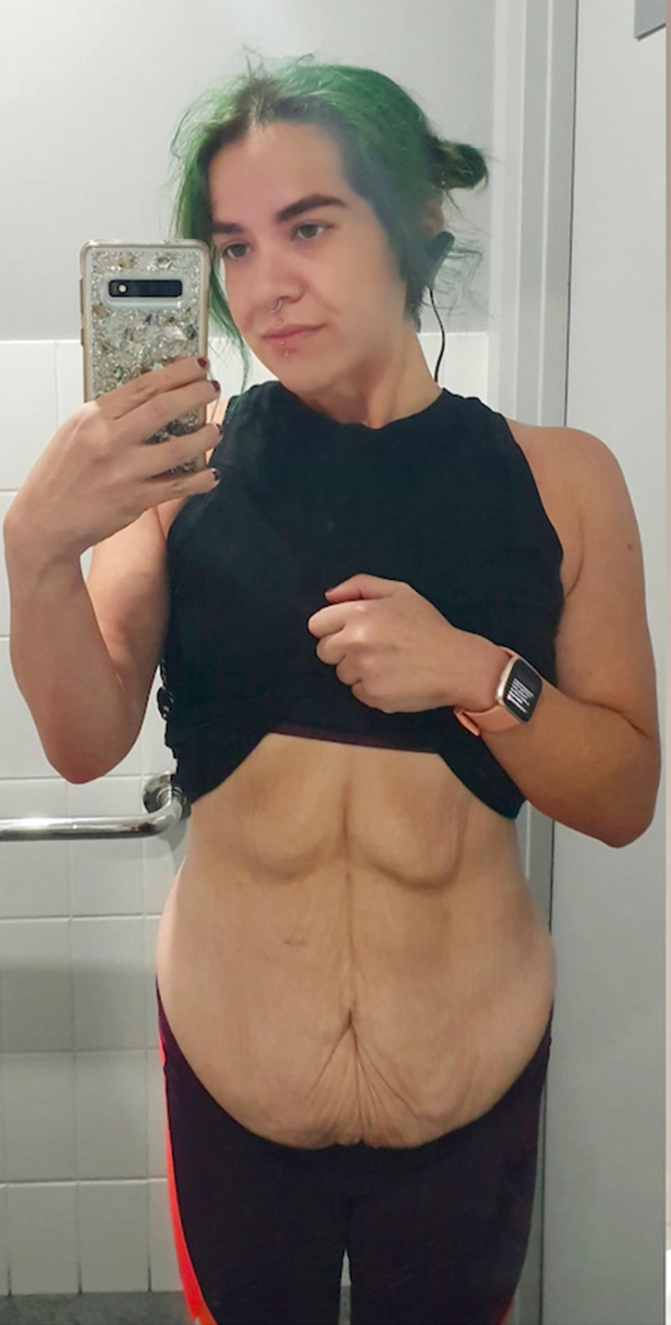 After losing 68kg, Michelle had a lot of loose skin around her stomach and in October 2019, she decided to have an abdominoplasty to get rid of it. Photo: Caters News