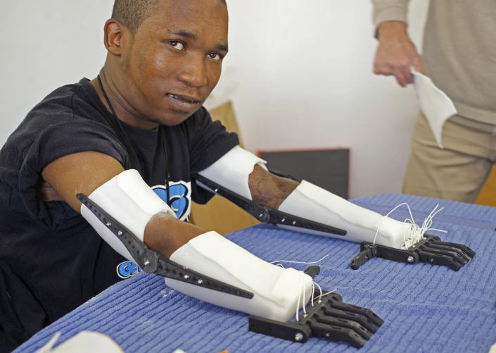 In this photo taken Friday, Aug. 16, 2013, Flippie Engelbrecht, shows his Robohands after being fitted by carpenter Richard van As, unseen left, in Cape Town, South Africa. Van As a South African carpenter developed the plastic hands after losing four fingers to a circular saw two years ago. AP Photo/Schalk van Zuydam)