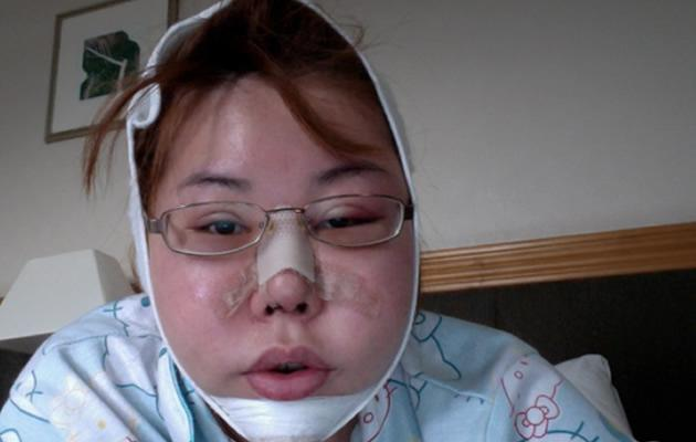 Jacqueline Koh in the early days post surgery (Photo courtesy of Jacqueline Koh)