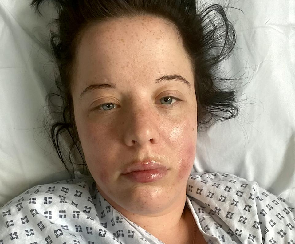 Kirsty was left fighting for her life. (SWNS)