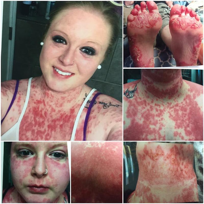 collage of photos of woman with red, flaky patches on her skin