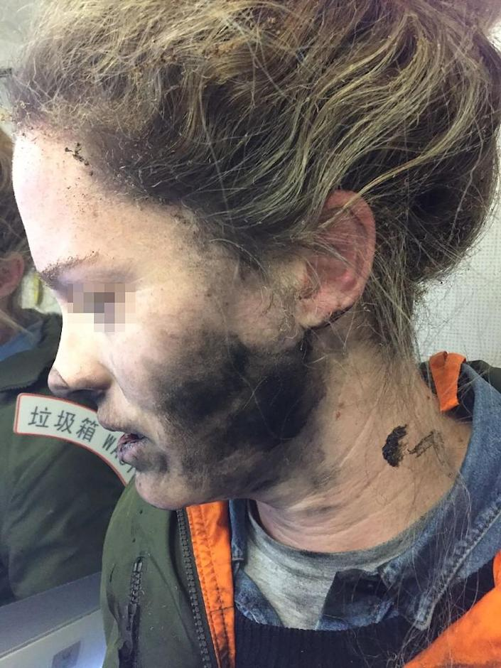 """""""As I went to turn around I felt burning on my face,"""" the woman said """"I grabbed them off and threw them on the floor. They were sparking and had small amounts of fire."""" (AFP Photo/Handout)"""