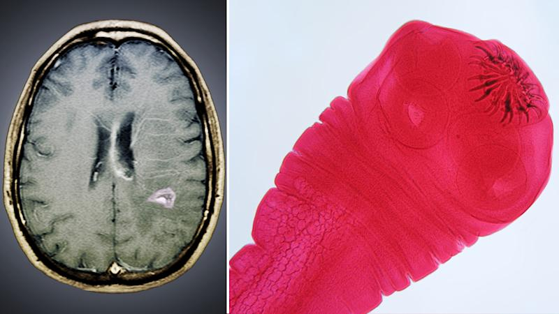 Stock images of a parasitic tapeworm inside a person's brain and tapeworm larvae.