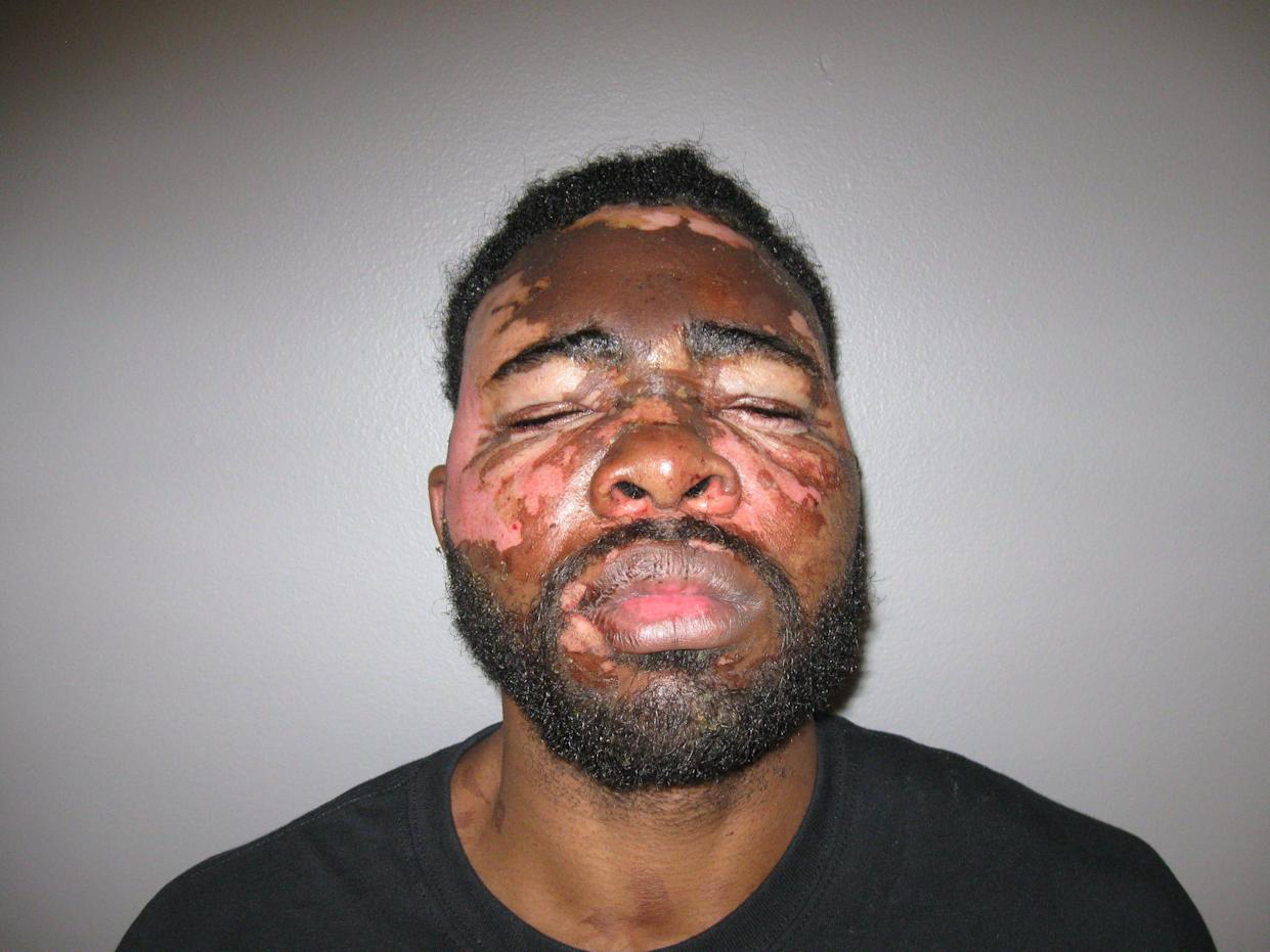 Larondrick Macklin, 31, was arrested in Alabama after police say he broke into a woman's home and she threw hot grease on him.