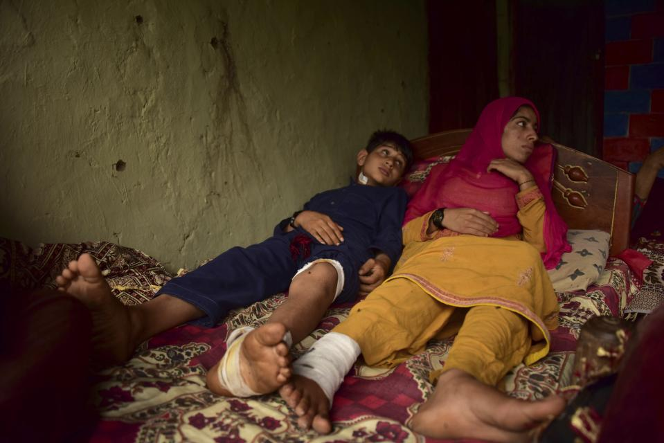 FILE - In this Aug. 9, 2019, file photo, Pakistani Kashmiri boy Fakhar, 11, who was allegedly injured with his sister Sadaf Bibi, 18, by an artillery fired across the border, rests at his home in Chilana, situated at the Line of Control between Pakistan and India. The Line of Control, a highly militarized de facto border that divides the disputed region between the two nuclear-armed rivals India and Pakistan, and a site of hundreds of deaths, is unusually quiet after the two South Asian neighbors agreed in February, 2021, to reaffirm their 2003 cease-fire accord. (AP Photo/M.D. Mughal, File)