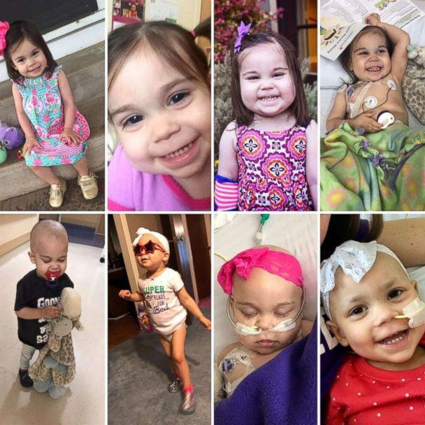 PHOTO: Sophie Skiles, 2, has undergone at least 15 rounds of chemotherapy since being diagnosed with T-cell lymphoma in May. (Shelby Skiles)