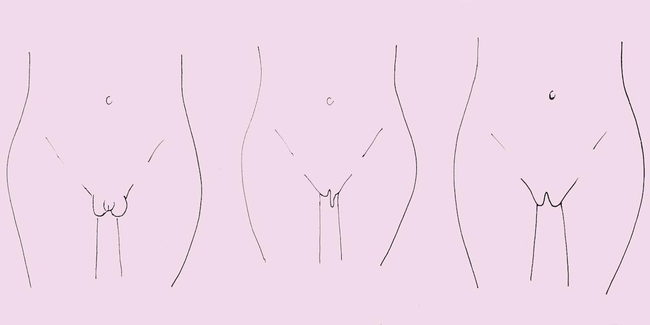 <p>If you've ever worried about whether your vulva is normal, read this and realise the answer is YES.</p>