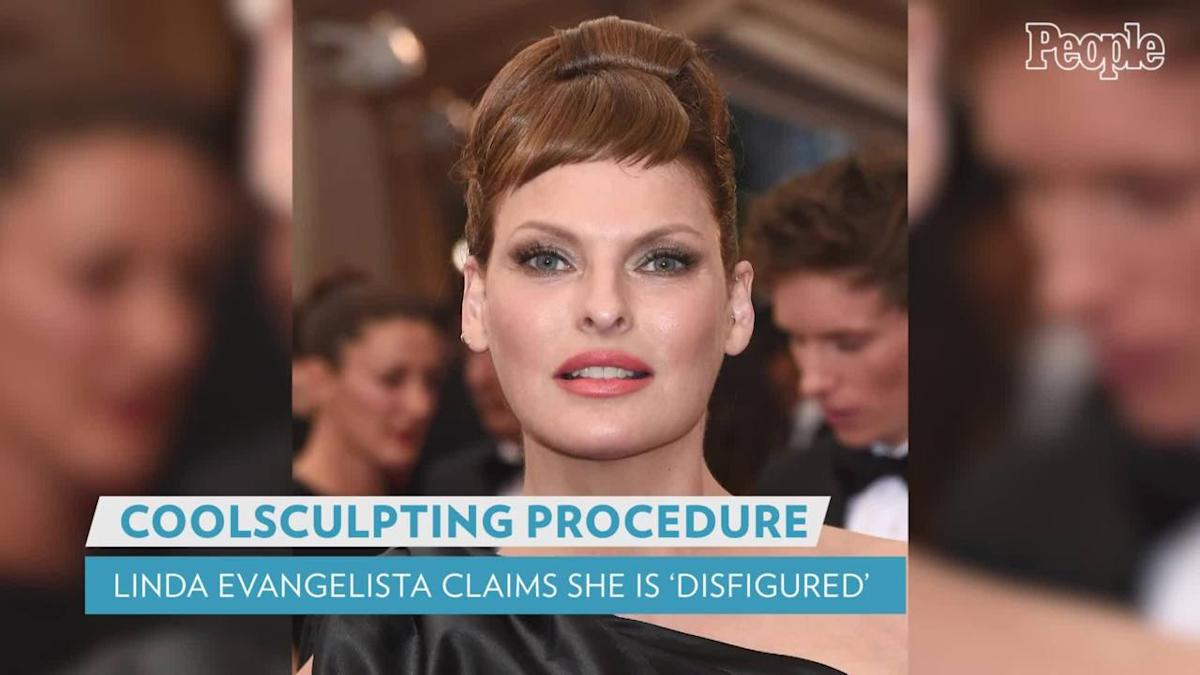 Supermodel Linda Evangelista Says She's Been 'Brutally Disfigured' by CoolSculpting Procedure Done 5 Years Ago - Yahoo Entertain