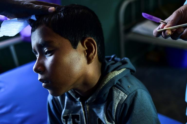Mohammad Rashed, 11, is one of more than 3,000 Rohingya refugees infected with diphtheria