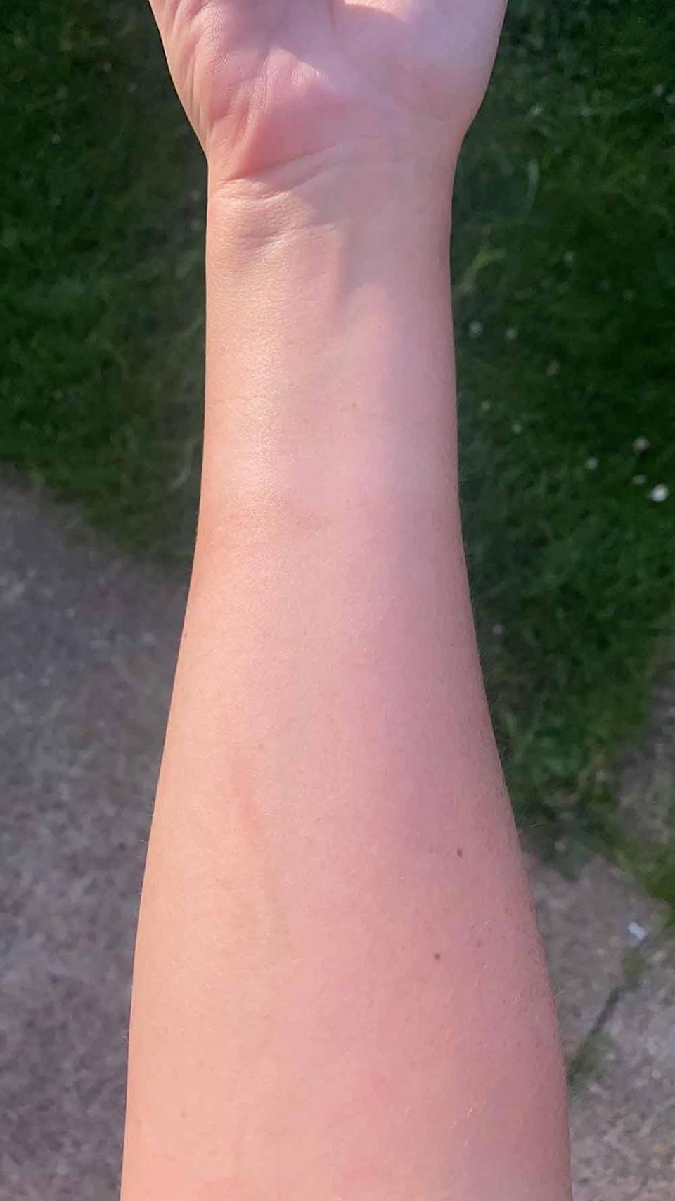 Paige's arm has healed after using the oil. PA REAL LIFE COLLECT