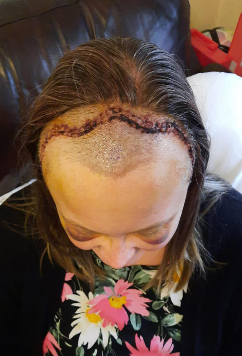 Marriott's scar five days after the craniotomy. (PA Real Life/Collect)
