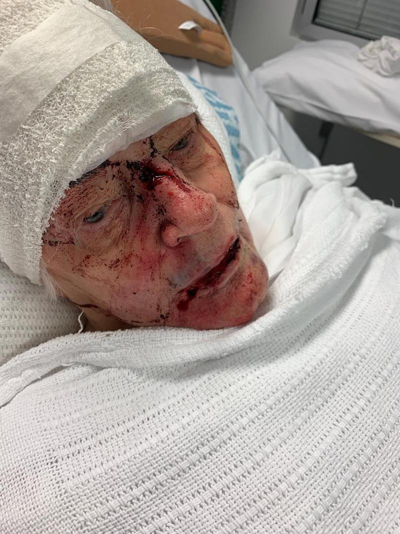 Sydney woman Patricia lays in her hospital bed with bloody injuries inflicted on her face. Her head has been bandaged up.