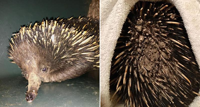 An echidna is pictured with burnt spines. Melted plastic is seen on the animal's back.