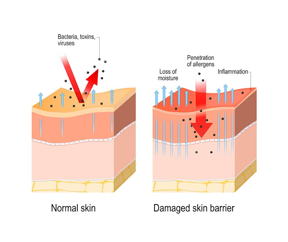 Diagrams demonstrating the difference between healthy and dry skin