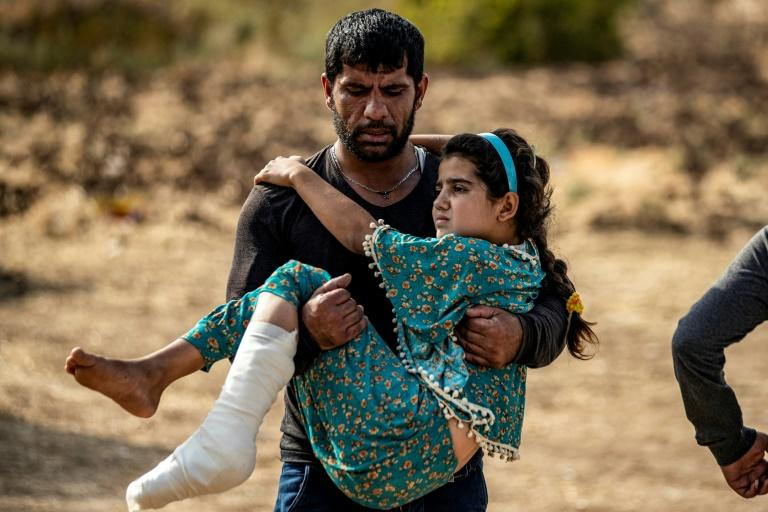 A Syrian Arab girl injured by a mortar reportedly fired from Turkish-controlled areas on Ras Al-Ain, is carried to a hospital in nearby Tal Tamr