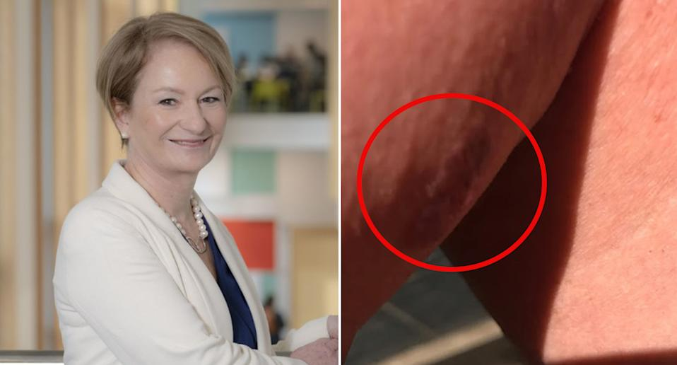 Seonag MacKinnon was diagnosed with melanoma after a masseuse noticed a strange mark on her leg. Source: Twitter/TODAY
