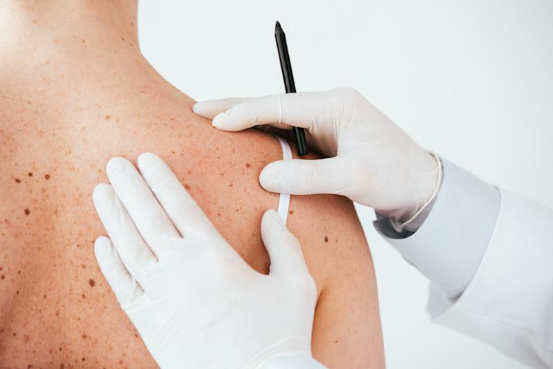 Vitamin A May Help Stave Off Skin Cancer, According to a New Study